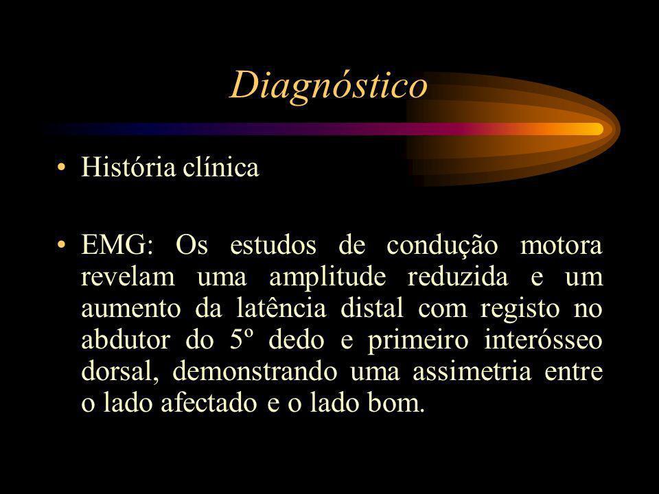 Diagnóstico História clínica EMG: Os estudos de condução motora revelam uma amplitude reduzida e um aumento da latência distal com registo no abdutor