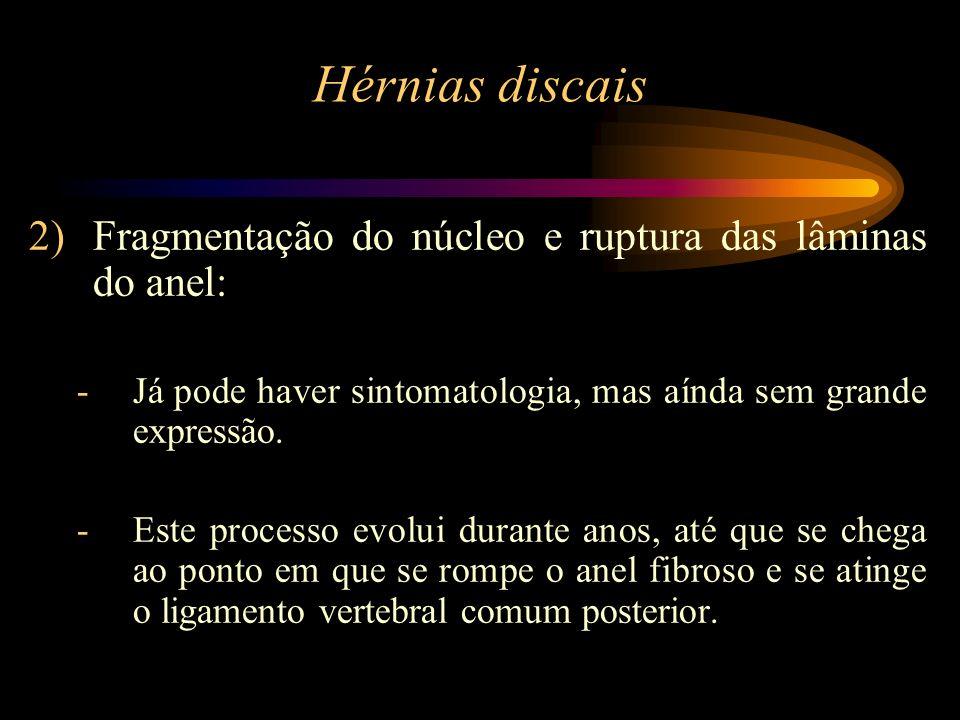 Hérnias discais 2)Fragmentação do núcleo e ruptura das lâminas do anel: -Já pode haver sintomatologia, mas aínda sem grande expressão. -Este processo