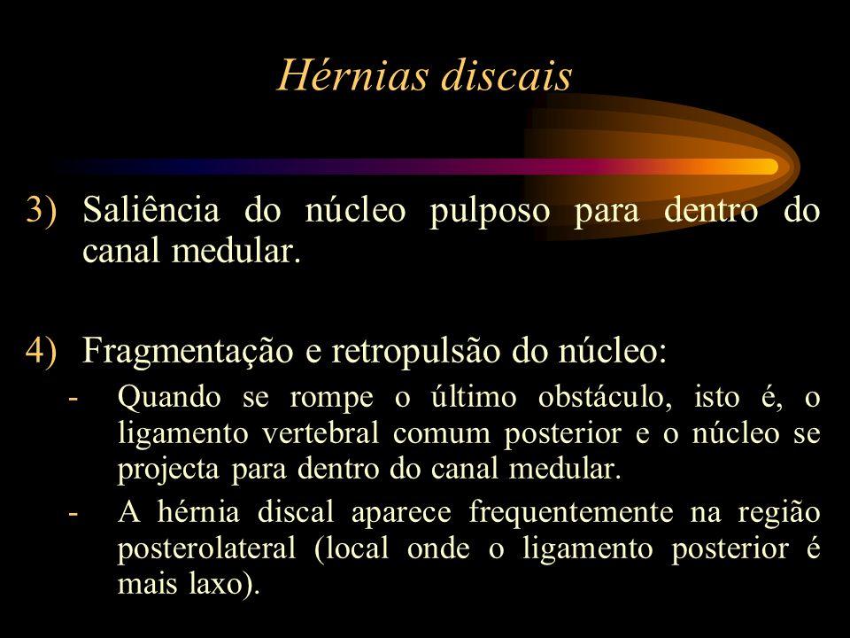 Hérnias discais 3)Saliência do núcleo pulposo para dentro do canal medular. 4)Fragmentação e retropulsão do núcleo: -Quando se rompe o último obstácul