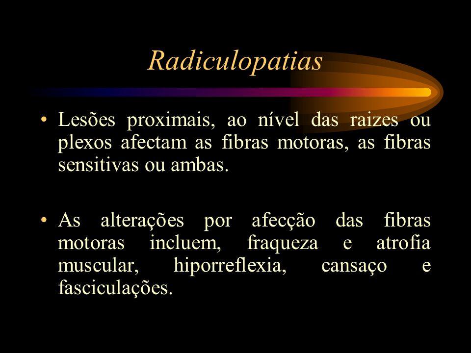 Radiculopatias Lesões proximais, ao nível das raizes ou plexos afectam as fibras motoras, as fibras sensitivas ou ambas. As alterações por afecção das