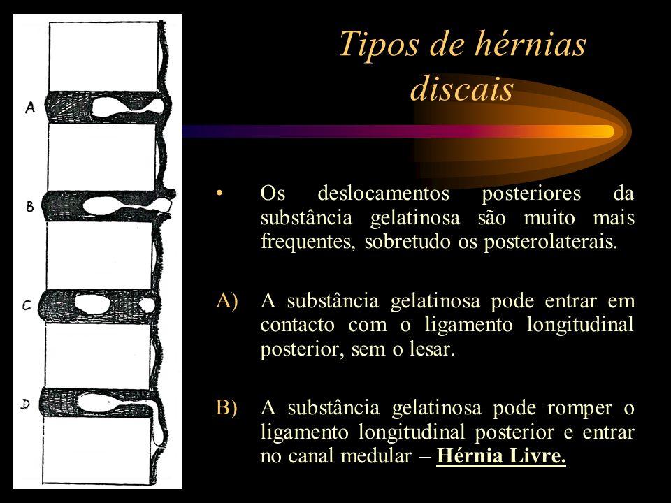 Tipos de hérnias discais Os deslocamentos posteriores da substância gelatinosa são muito mais frequentes, sobretudo os posterolaterais. A)A substância