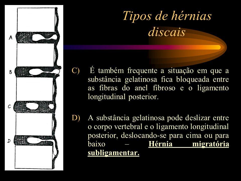 Tipos de hérnias discais C) É também frequente a situação em que a substância gelatinosa fica bloqueada entre as fibras do anel fibroso e o ligamento