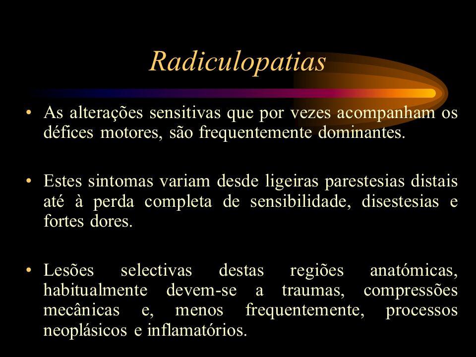 Radiculopatias As alterações sensitivas que por vezes acompanham os défices motores, são frequentemente dominantes. Estes sintomas variam desde ligeir