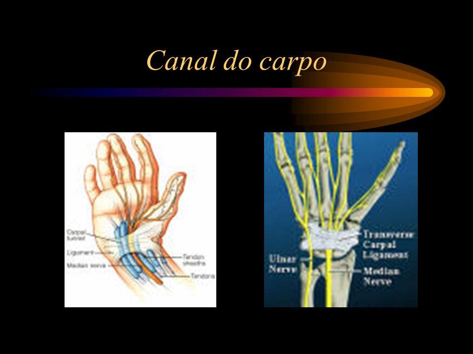 Causas de origem não-ocupacional Trauma directo externo, alongamento traumático do nervo cubital.