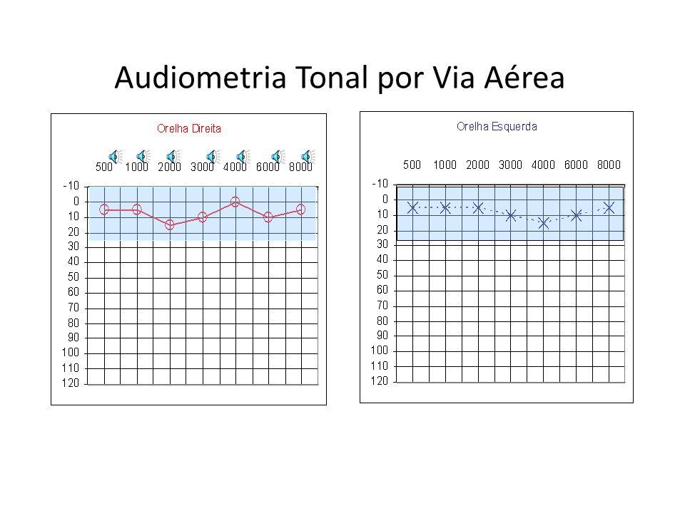 Audiometria Tonal por Via Aérea