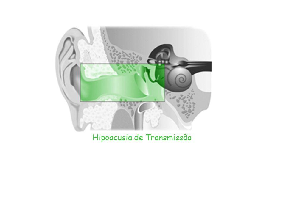 Hipoacusia de Transmissão