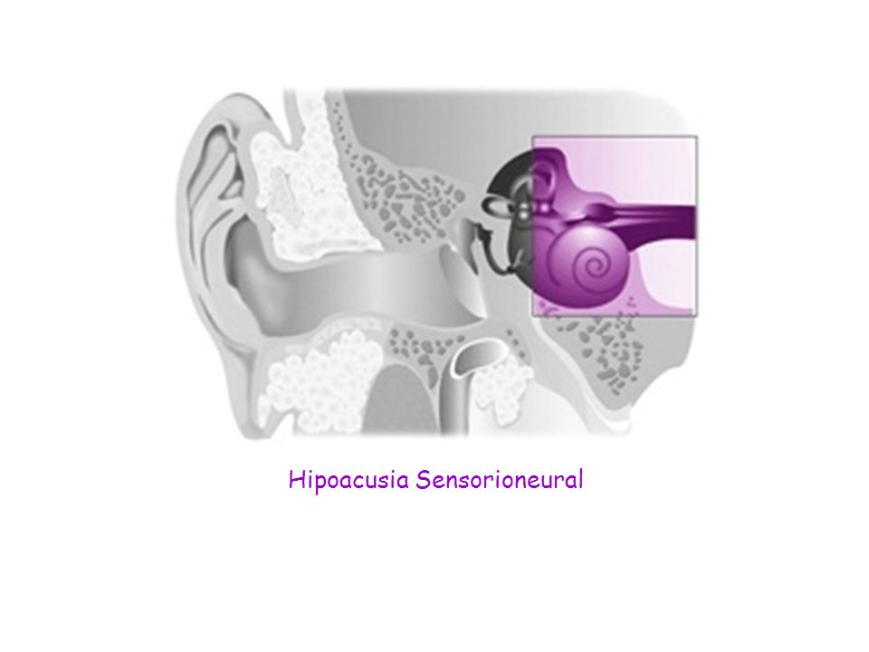 Hipoacusia Sensorioneural