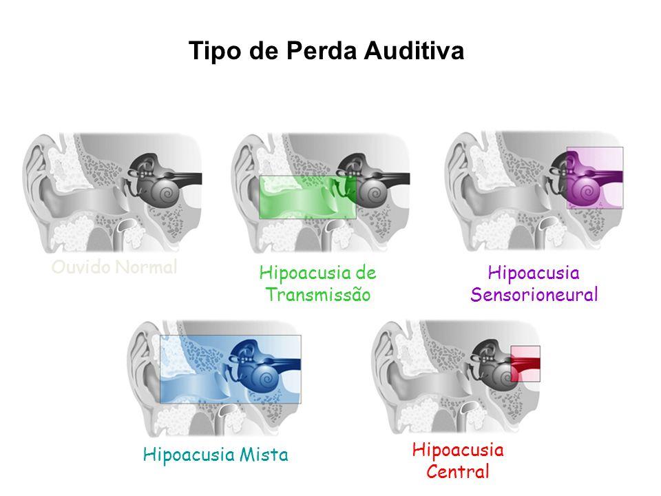 Ouvido Normal Hipoacusia de Transmissão Hipoacusia Sensorioneural Hipoacusia Mista Hipoacusia Central Tipo de Perda Auditiva