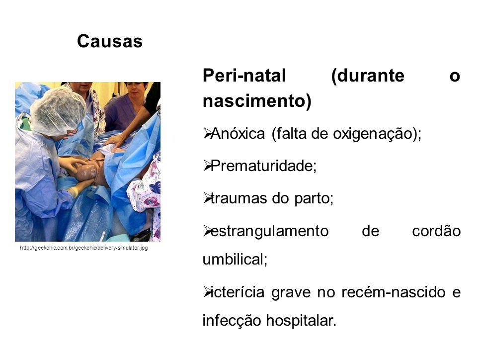 Causas Peri-natal (durante o nascimento) Anóxica (falta de oxigenação); Prematuridade; traumas do parto; estrangulamento de cordão umbilical; icteríci