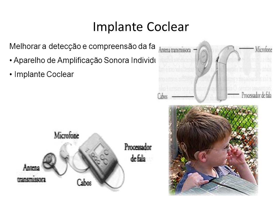 Implante Coclear Melhorar a detecção e compreensão da fala Aparelho de Amplificação Sonora Individual Implante Coclear