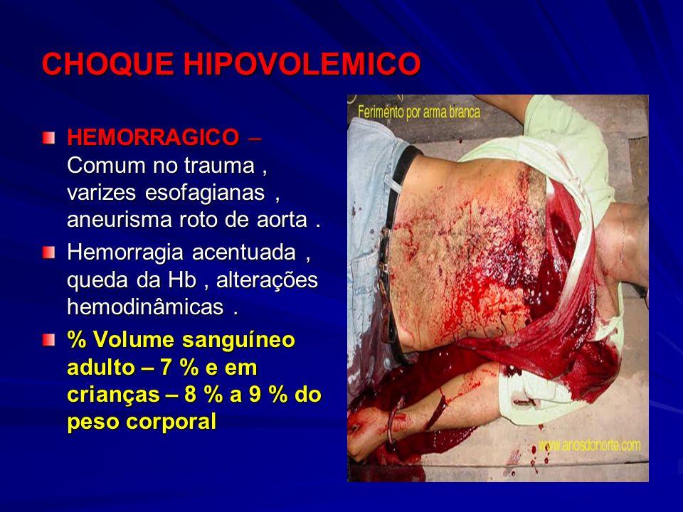 CHOQUE HIPOVOLEMICO HEMORRAGICO – Comum no trauma, varizes esofagianas, aneurisma roto de aorta. Hemorragia acentuada, queda da Hb, alterações hemodin
