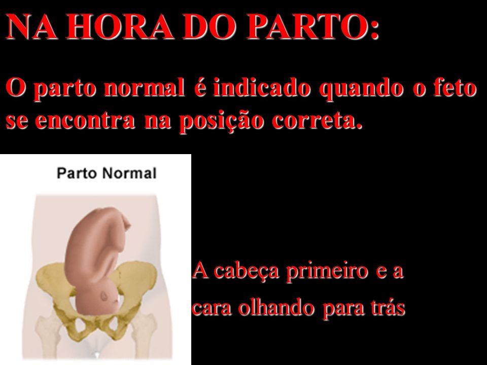 NA HORA DO PARTO: O parto normal é indicado quando o feto se encontra na posição correta. A cabeça primeiro e a cara olhando para trás