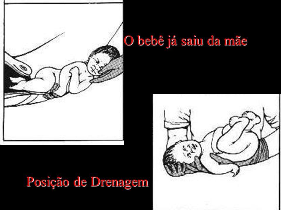 Posição de Drenagem O bebê já saiu da mãe