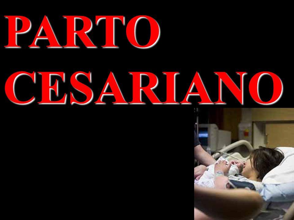 PARTO CESARIANO