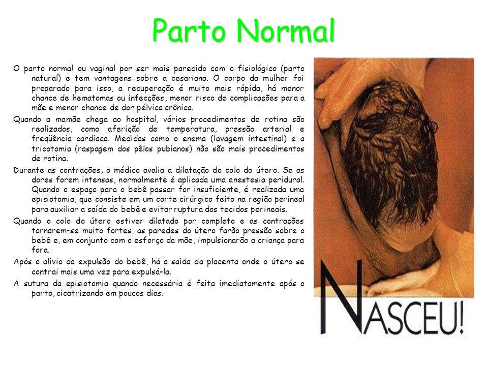 Parto Normal O parto normal ou vaginal por ser mais parecido com o fisiológico (parto natural) e tem vantagens sobre a cesariana. O corpo da mulher fo