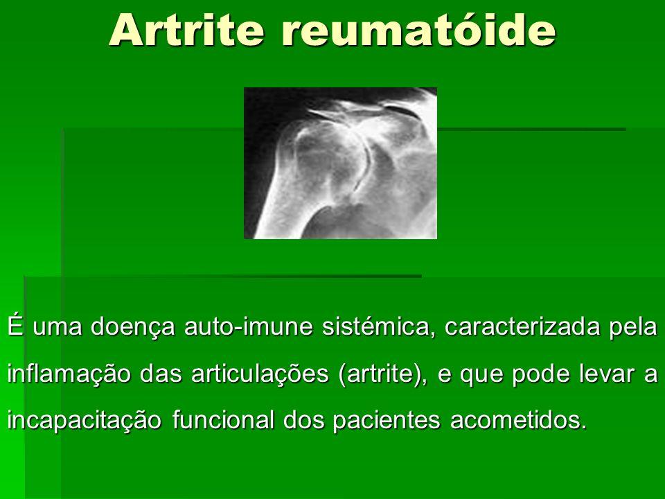 Artrite reumatóide É uma doença auto-imune sistémica, caracterizada pela inflamação das articulações (artrite), e que pode levar a incapacitação funci