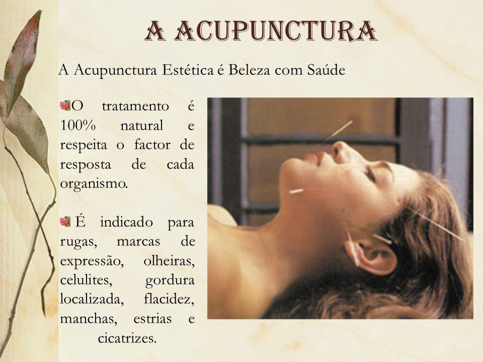 A acupunctura A Acupunctura Estética é Beleza com Saúde O tratamento é 100% natural e respeita o factor de resposta de cada organismo. É indicado para