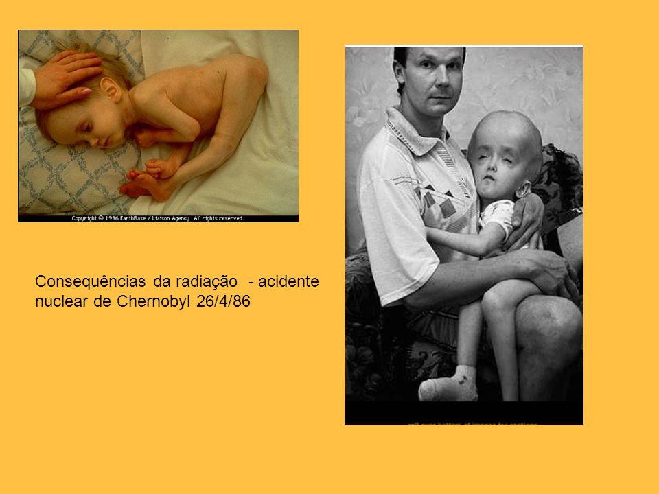 Consequências da radiação - acidente nuclear de Chernobyl 26/4/86