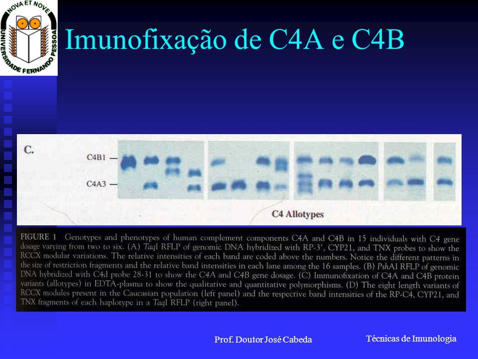 Técnicas de Imunologia Prof. Doutor José Cabeda Imunofixação de C4A e C4B