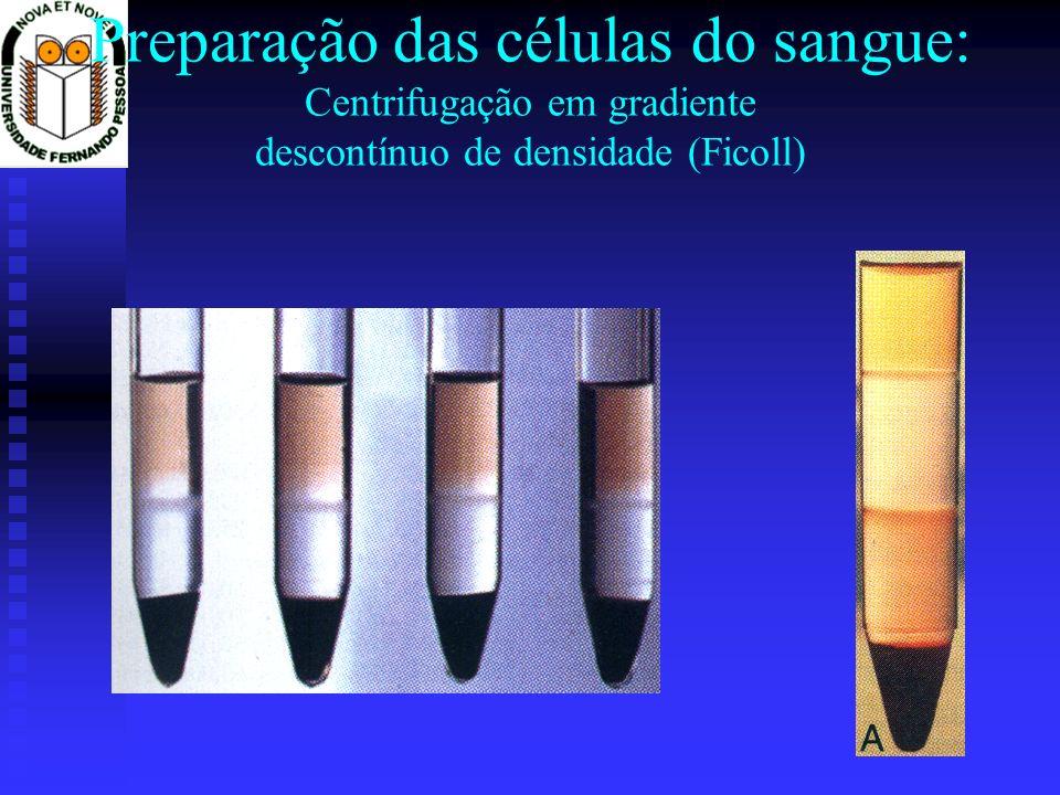 Preparação das células do sangue: Centrifugação em gradiente descontínuo de densidade (Ficoll)