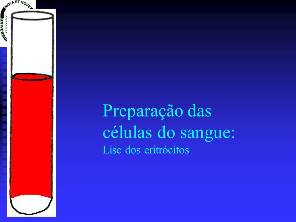 PREPARAÇÃO DE DNA E RNA DNA e RNA de mamiferos: DNA e RNA de mamiferos: Lise suave e solubilização do DNA/RNA Lise suave e solubilização do DNA/RNA Destruição enzimática das proteínas (proteases) Destruição enzimática das proteínas (proteases) Destrição e precipitação quimica das proteínas (fenol/clorofómio/ácido isoamilico) Destrição e precipitação quimica das proteínas (fenol/clorofómio/ácido isoamilico) Precipitação dos ácidos nucleicos (Acetato de amónio / Acetato de sódio / Cloreto de sódio) Precipitação dos ácidos nucleicos (Acetato de amónio / Acetato de sódio / Cloreto de sódio) Redissolução dos ácidos nucleicos (prévia remoção de sais) Redissolução dos ácidos nucleicos (prévia remoção de sais)