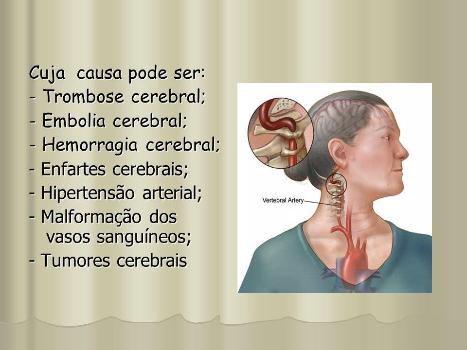 Cuja causa pode ser: - Trombose cerebral; - Embolia cerebral; - Hemorragia cerebral; - Enfartes cerebrais; - Hipertensão arterial; - Malformação dos v