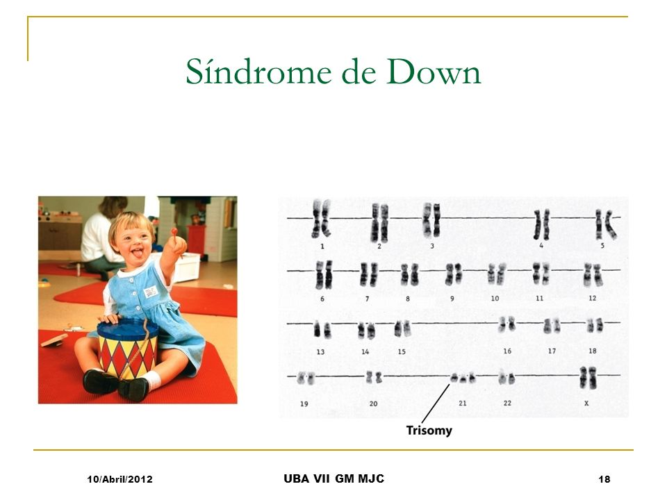 Síndrome de Down 10/Abril/201218 UBA VII GM MJC