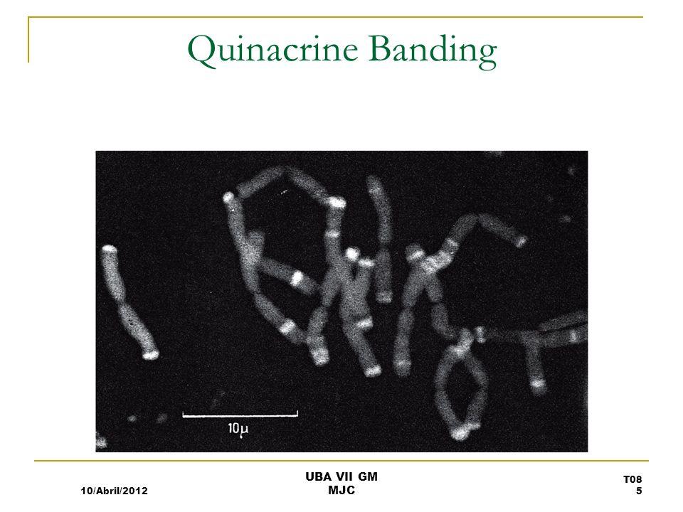 Quinacrine Banding 10/Abril/2012 T08 5 UBA VII GM MJC
