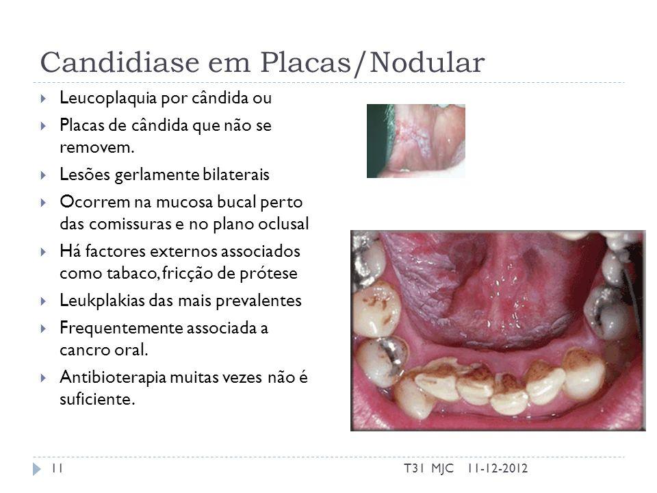 Candidiase em Placas/Nodular Leucoplaquia por cândida ou Placas de cândida que não se removem. Lesões gerlamente bilaterais Ocorrem na mucosa bucal pe