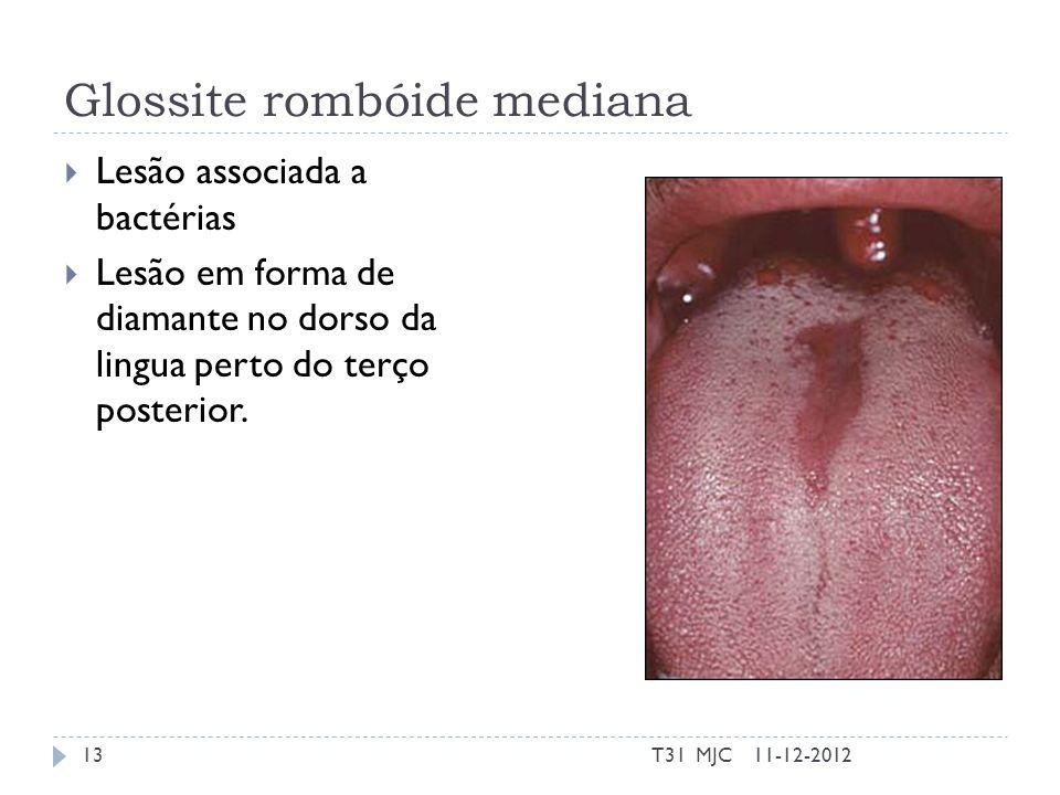 Glossite rombóide mediana Lesão associada a bactérias Lesão em forma de diamante no dorso da lingua perto do terço posterior. 11-12-201213T31 MJC