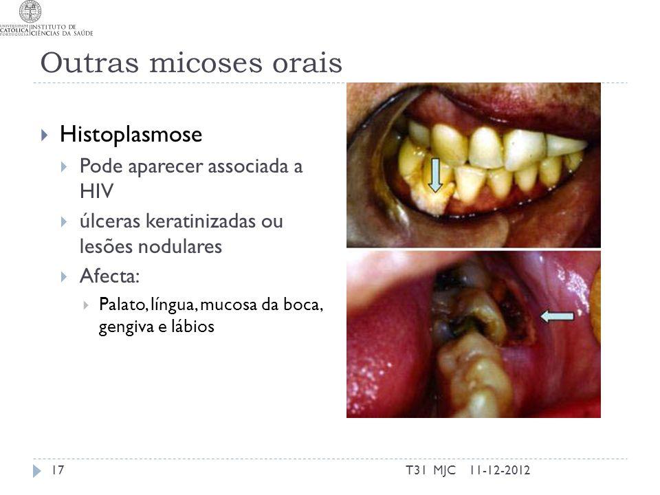 Outras micoses orais Histoplasmose Pode aparecer associada a HIV úlceras keratinizadas ou lesões nodulares Afecta: Palato, língua, mucosa da boca, gen