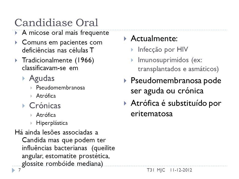 Candidiase Oral – Classificação Pseudomembranosa aguda Eritomatosa aguda Crónica em placas/nodular Crónica eritematosa Pseudomembranosa crónica Extensão no tempo Aguda Crónica Aparência do tecido Branco Vermelho Possibilidade de remoção das placas 11-12-20128T31 MJC