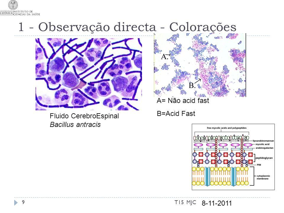 1 - Observação directa - Colorações Fluido CerebroEspinal Bacillus antracis A= Não acid fast B=Acid Fast 8-11-2011 9T15 MJC