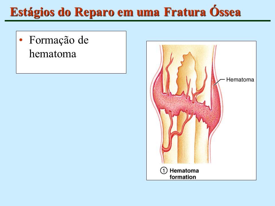 Estágios do Reparo em uma Fratura Óssea Formação de hematoma