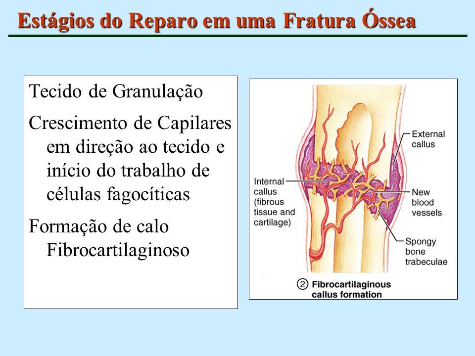 Estágios do Reparo em uma Fratura Óssea Tecido de Granulação Crescimento de Capilares em direção ao tecido e início do trabalho de células fagocíticas