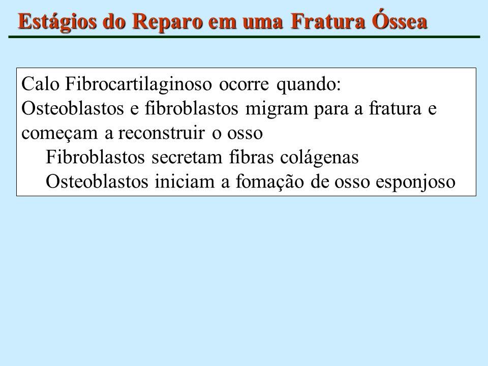 Estágios do Reparo em uma Fratura Óssea Calo Fibrocartilaginoso ocorre quando: Osteoblastos e fibroblastos migram para a fratura e começam a reconstru