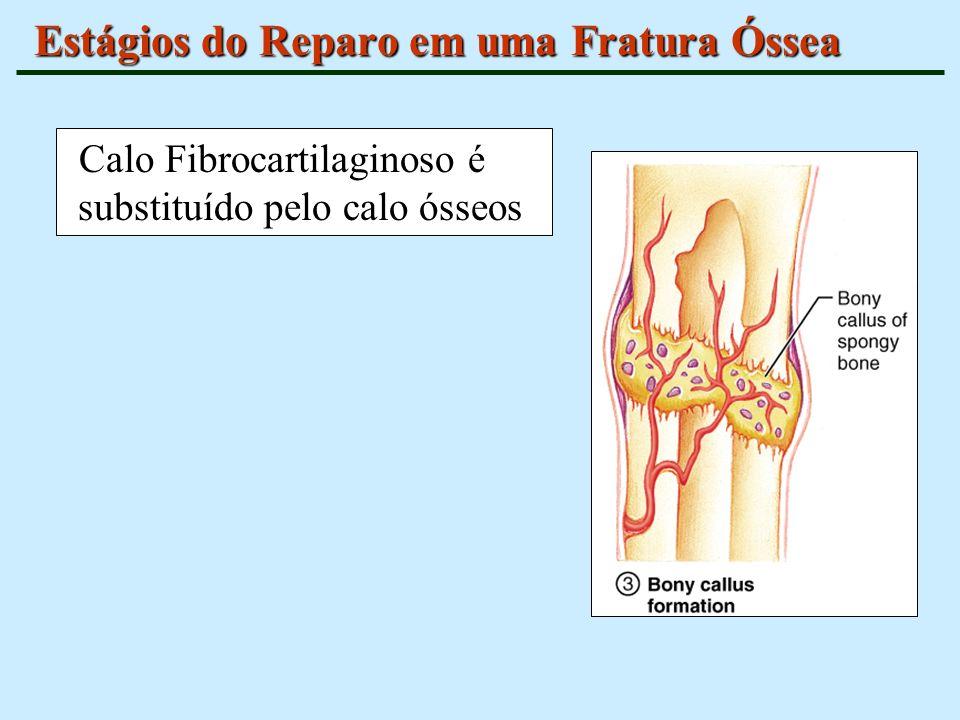 Estágios do Reparo em uma Fratura Óssea Calo Fibrocartilaginoso é substituído pelo calo ósseos