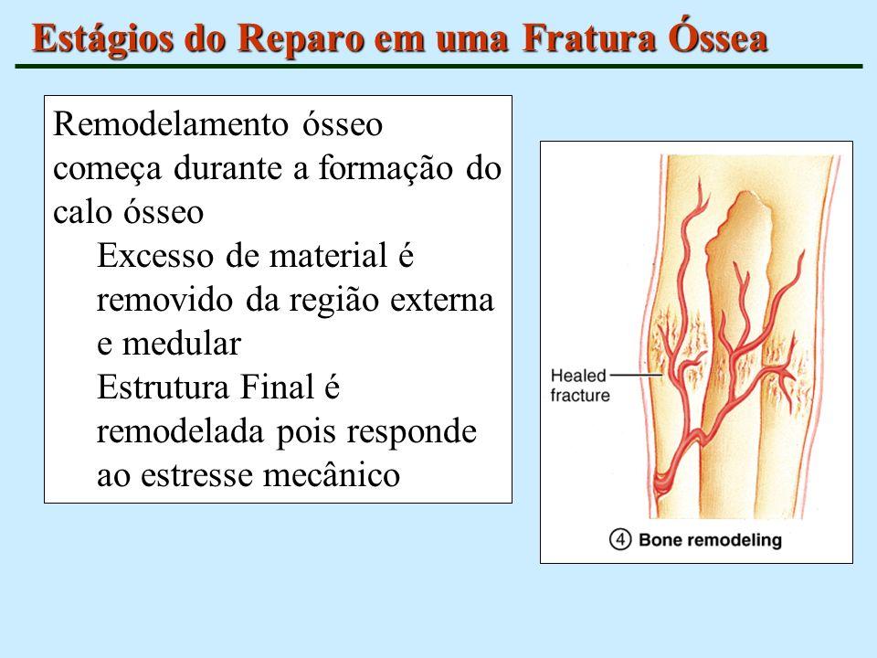 Estágios do Reparo em uma Fratura Óssea Remodelamento ósseo começa durante a formação do calo ósseo Excesso de material é removido da região externa e