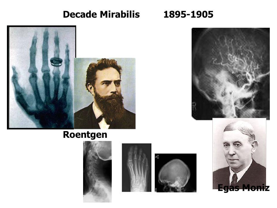 Decade Mirabilis 1895-1905 Roentgen Egas Moniz