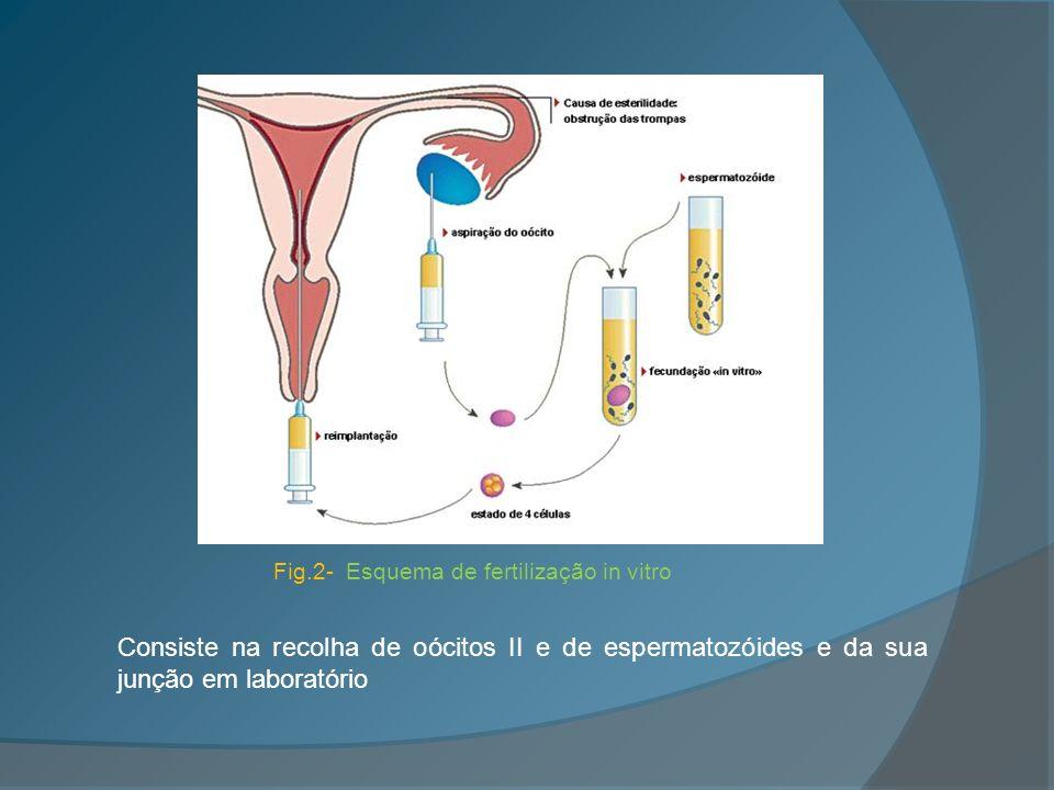 Injecção Intracitoplasmática de Espermatozóides ou ICSI (Intracytroplasmatic Sperm Injection) Esta técnica é utilizada em casos de infertilidade masculina: - poucos ou nenhuns espermatozóides no ejaculado; - espermatozóides com baixa mobilidade; - percentagem baixa de espermatozóides com morfologia normal.