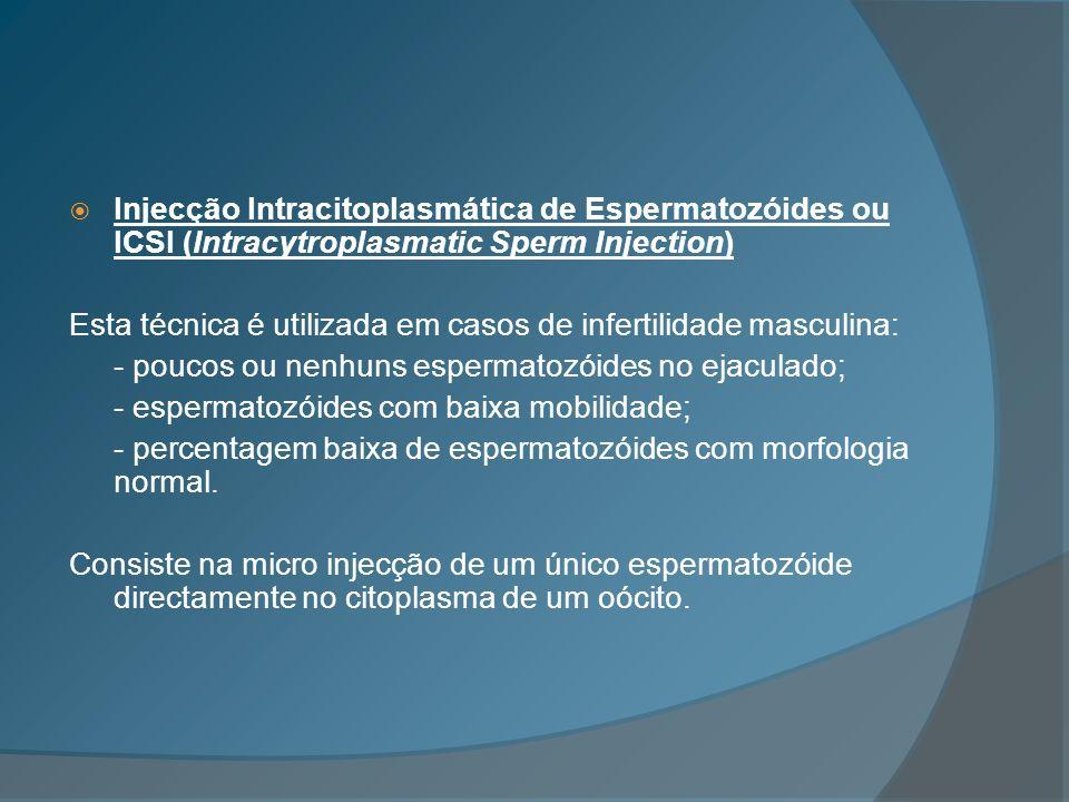 Injecção Intracitoplasmática de Espermatozóides ou ICSI (Intracytroplasmatic Sperm Injection) Esta técnica é utilizada em casos de infertilidade mascu