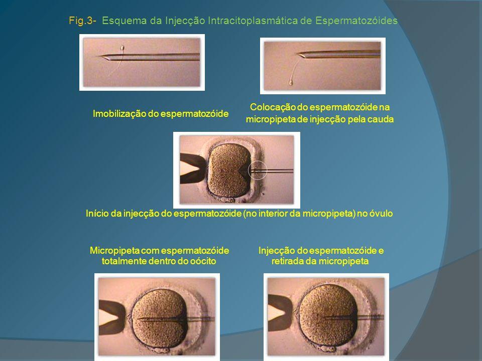 Imobilização do espermatozóide Colocação do espermatozóide na micropipeta de injecção pela cauda Início da injecção do espermatozóide (no interior da