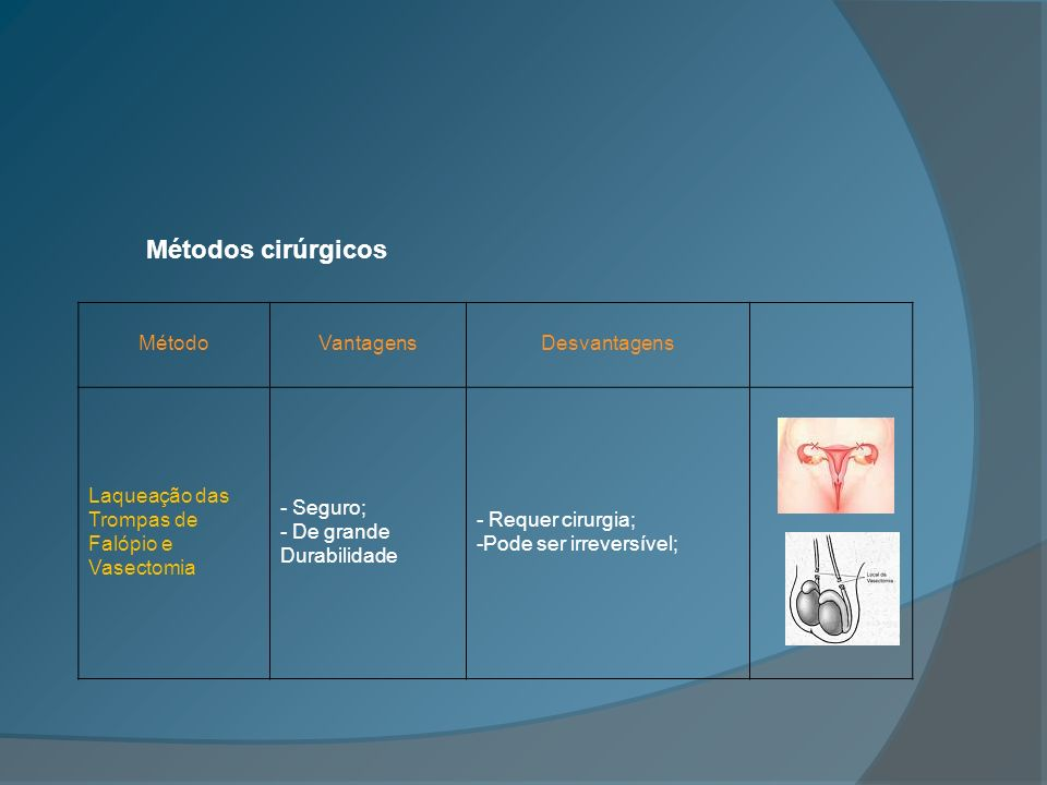 MétodoVantagensDesvantagens Laqueação das Trompas de Falópio e Vasectomia - Seguro; - De grande Durabilidade - Requer cirurgia; -Pode ser irreversível