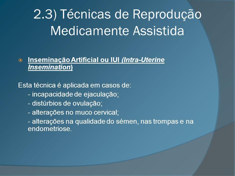 2.3) Técnicas de Reprodução Medicamente Assistida Inseminação Artificial ou IUI (Intra-Uterine Insemination) Esta técnica é aplicada em casos de: - in