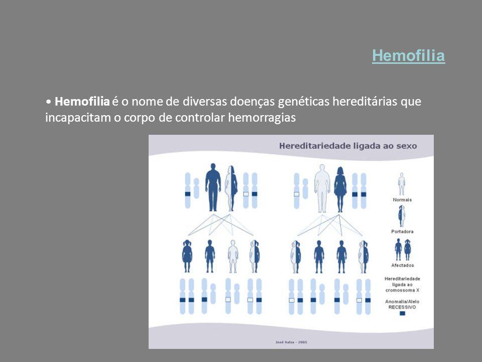 Hemofilia Hemofilia é o nome de diversas doenças genéticas hereditárias que incapacitam o corpo de controlar hemorragias