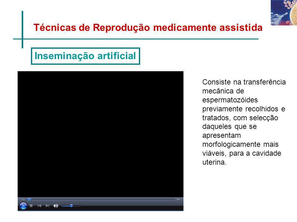 Técnicas de Reprodução medicamente assistida Consiste na transferência mecânica de espermatozóides previamente recolhidos e tratados, com selecção daq