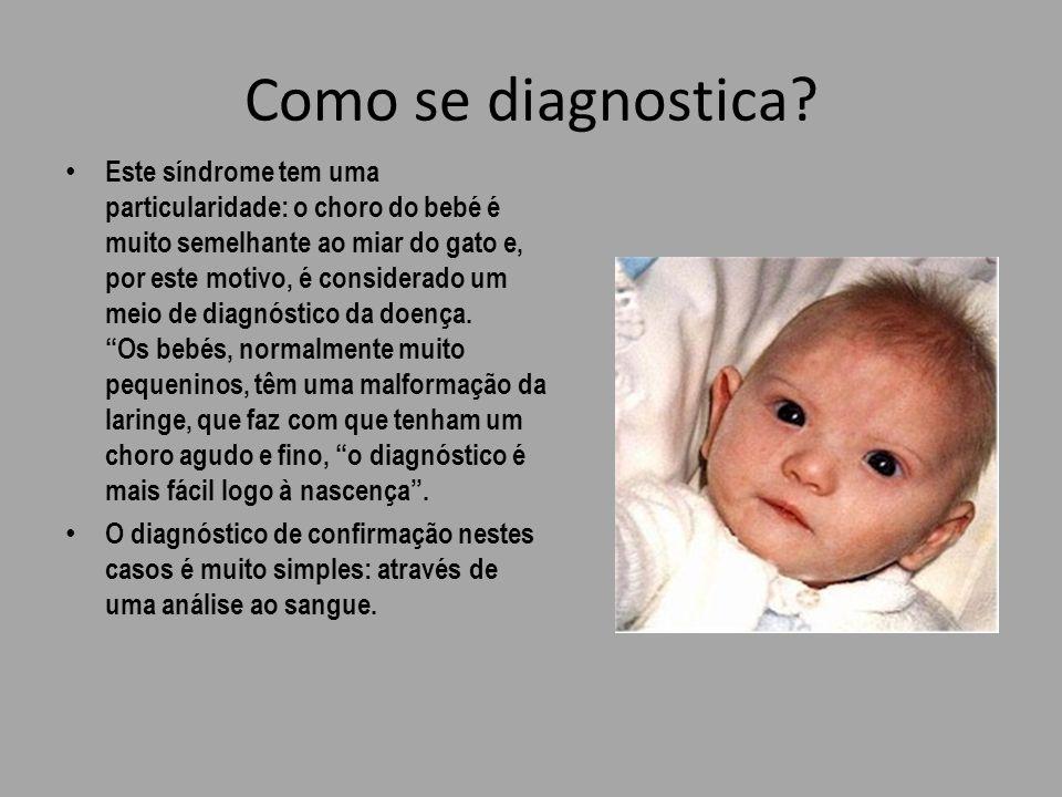 Como se diagnostica? Este síndrome tem uma particularidade: o choro do bebé é muito semelhante ao miar do gato e, por este motivo, é considerado um me