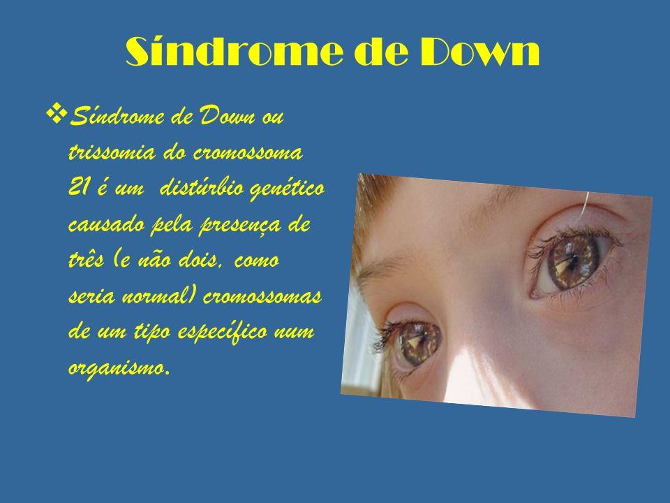 Síndrome de Down Síndrome de Down ou trissomia do cromossoma 21 é um distúrbio genético causado pela presença de três (e não dois, como seria normal)
