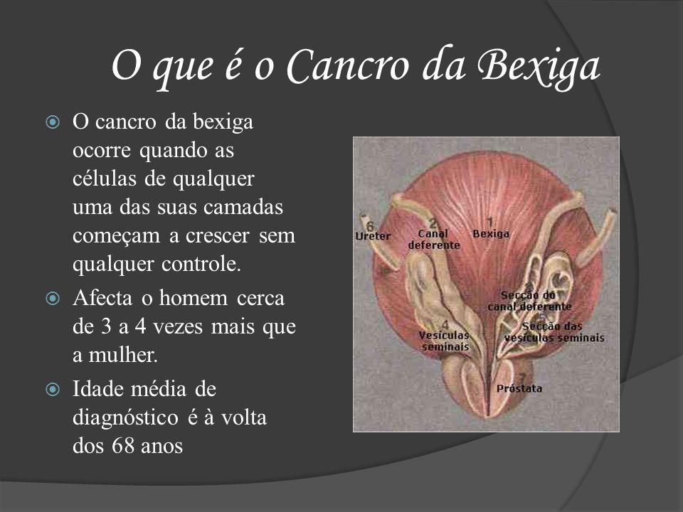 O que é o Cancro da Bexiga O cancro da bexiga ocorre quando as células de qualquer uma das suas camadas começam a crescer sem qualquer controle. Afect