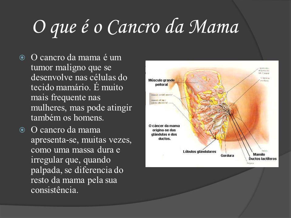 O que é o Cancro da Mama O cancro da mama é um tumor maligno que se desenvolve nas células do tecido mamário. É muito mais frequente nas mulheres, mas